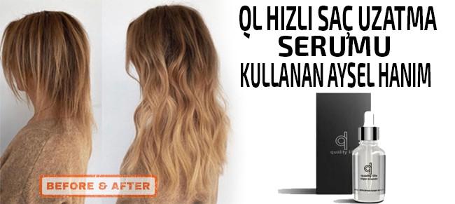 QL saç uzatma serumu kullanıcı görseli